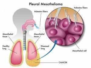 Pleural mesothelioma diagram with closeup of mesothelial cell