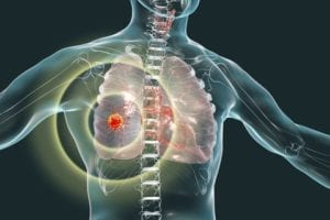 mesothelioma metastasis prevention